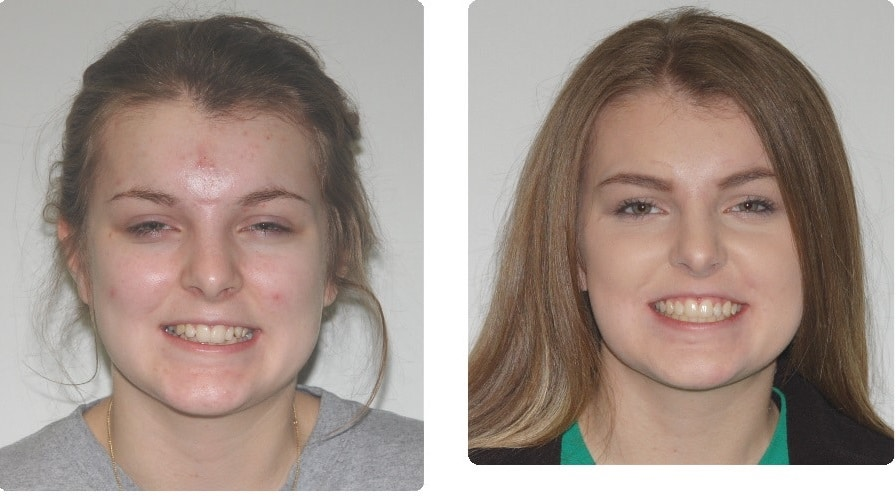 Before-After-.-Foote-Mallory-front-smiling-intraoral-front copy