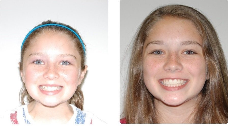 Before-After-.-Freiberger-Gracie-front-smile-intraoral-front copy