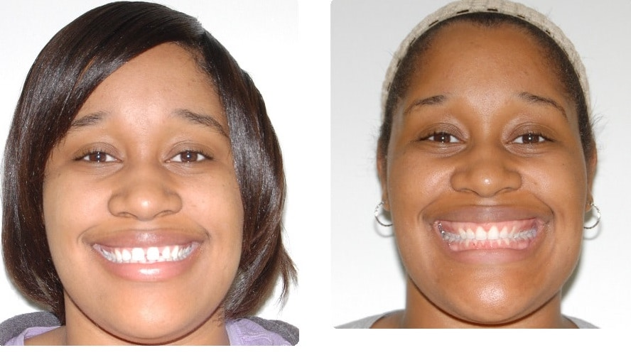 Before-After-.-Glover-Faith-fronta-smiling-intraoral-front copy