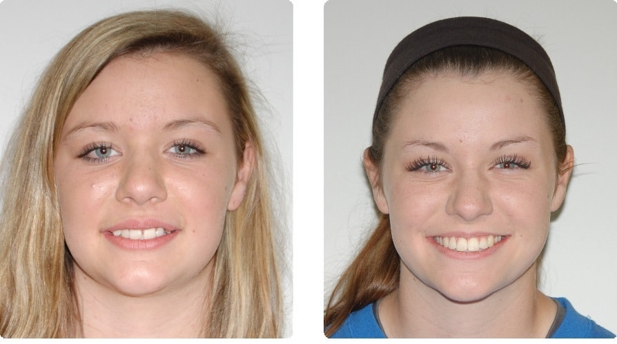 Before-After-.-Watts-Lucy-front-smiling-intraoral-front copy