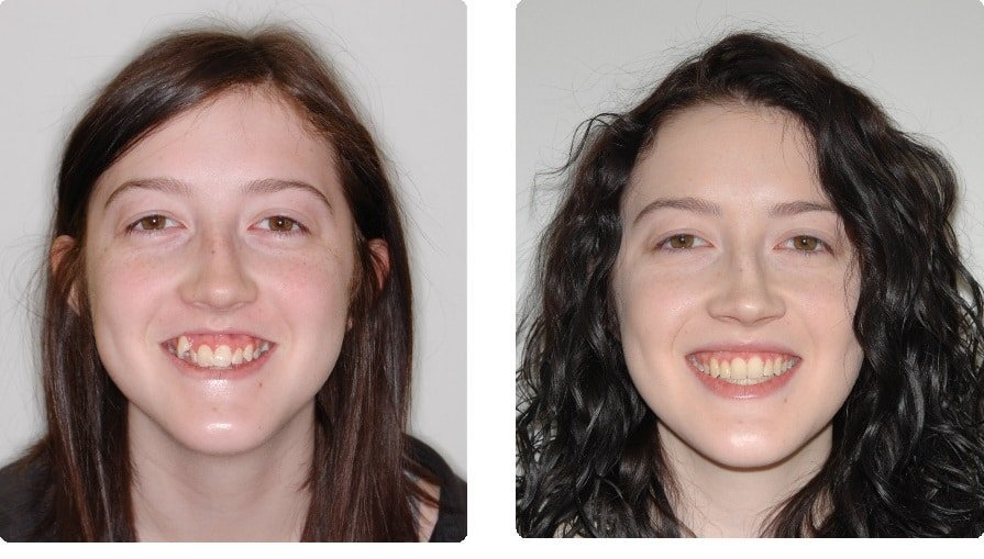 Before-After-Glover-Sophia-front-smiling-intraoral-front-1 copy