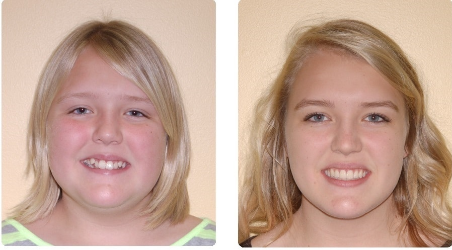 Before-After.-StarkeyJessica-front-smile copy